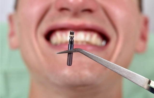 ایمپلنتولوژیست یا دندانپزشک عمومی