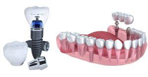 تکنولوژی های ایمپلنت دندان
