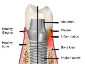 peri-implantitis | پری ایمپلنتیتیس