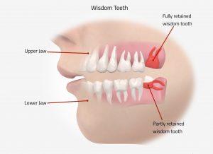 نشانه های دندان عقل پنهان