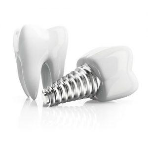 ایمپلنت دندان و استخوان فک