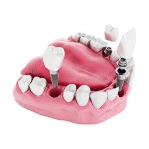 چند نکته در مورد ایمپلنت های دندان که بد نیست بدانید!