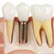 دندان ایمپلنت شده
