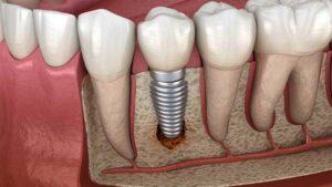 پس زدن ایمپلنت دندان