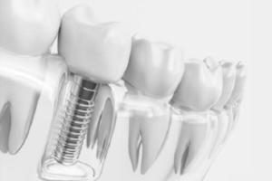 چندتا ایمپلنت دندان