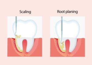 جرمگیری دندان و درمان ریشه دندان